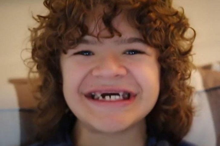 Gaten Matarazzo teeth ccd